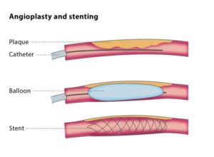 interventional radiology stent