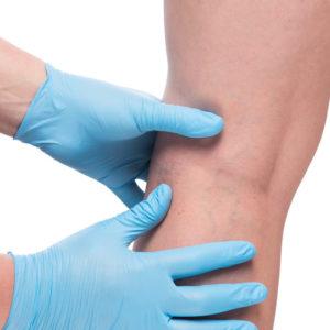 veins doctor initial exam ECCO medical